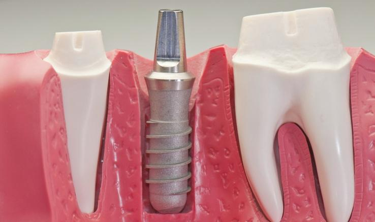 Dental Implants Las Vegas