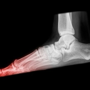 What Is A Stress Fracture And How Is It Caused?