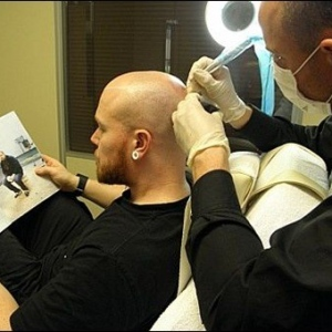 Benefits Of The Scalp Pigmentation