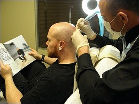 Benefits Of The Scalp Pigmentation