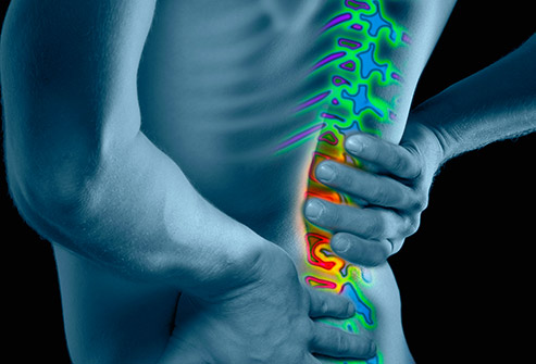 An Overview Of Lower Back Pain
