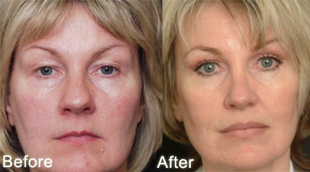 How To Behave Before And After The Eyelid Surgery