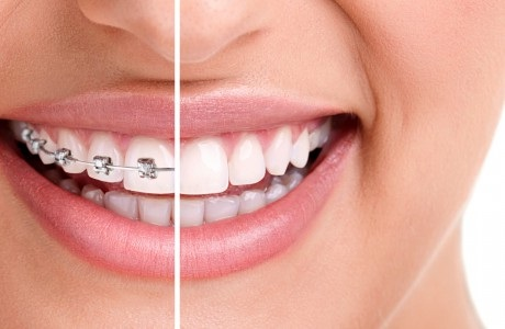 When To Look For An Orthodontist