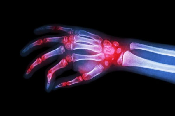 Rheumatoid Arthritis Week - What We Learned