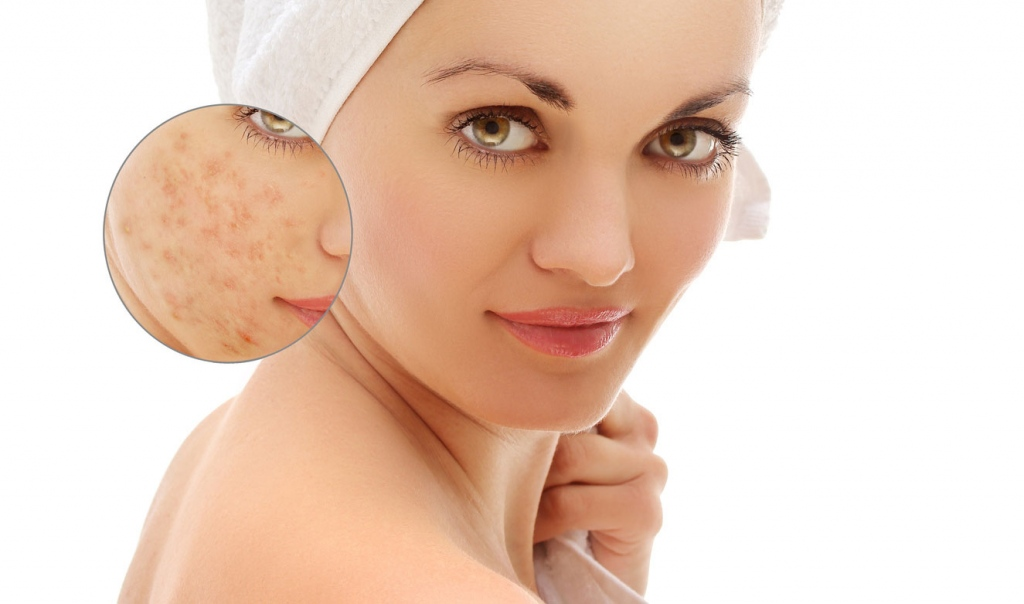 How To Get Rid Of Face Eczema? Some Helpful Tips You Can Use